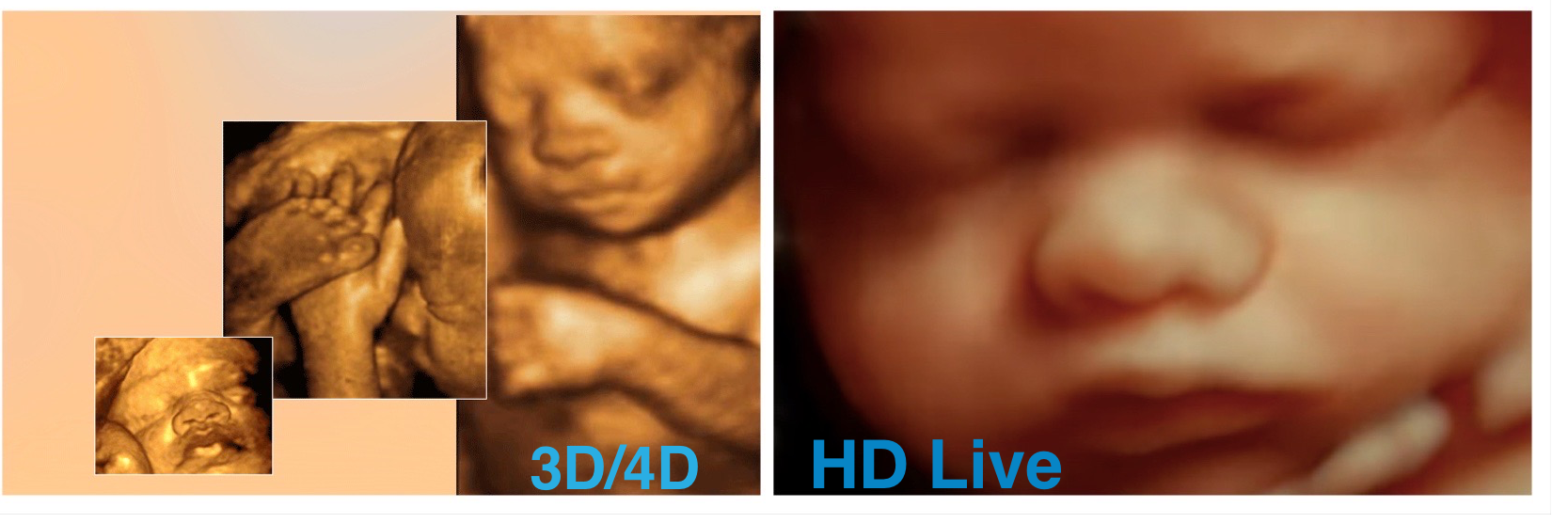 4d Ultrasound 3d Ultrasound Sonogram In Los Angeles